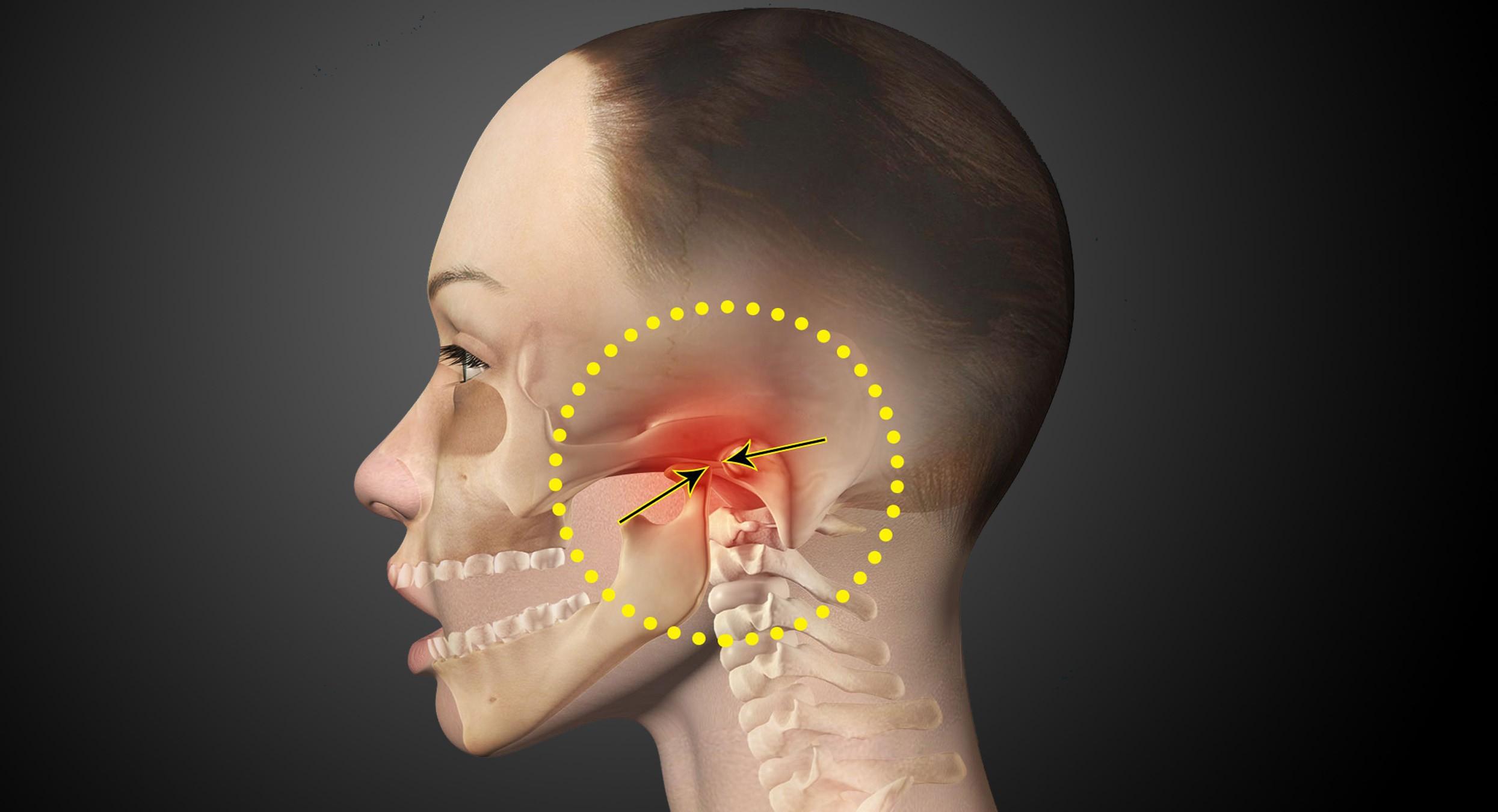 Артроз челюстного сустава: лечение, симптомы и причины
